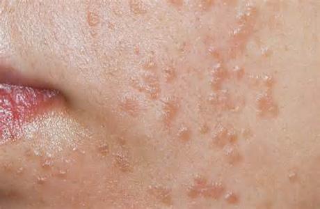 Yüz Çehresinde HPV Siğiller