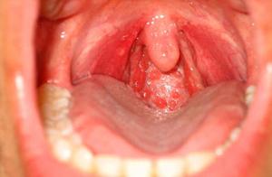 Boğaz HPV Siğil