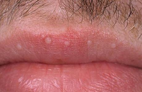 Dudakta HPV Siğil